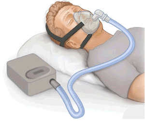 watch your cpap machine pressure